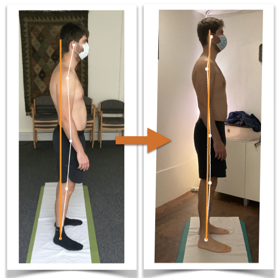 Client Gs body alignment before and after Posture Correction Therapy