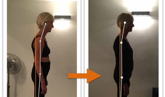 Client Ls body alignment before and after Posture Correction Therapy
